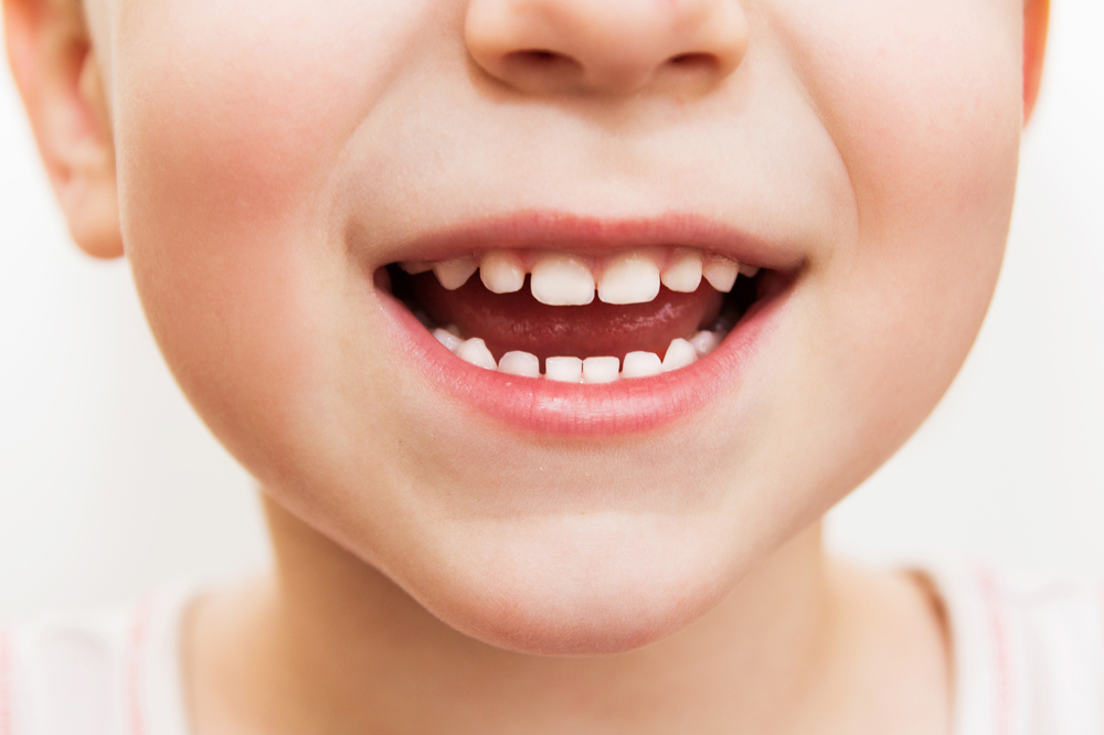 child smiling with teeth