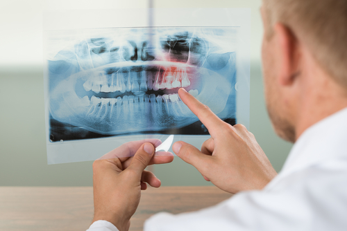 A dental x-ray
