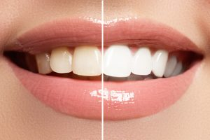 befre and after image of teeth whitening