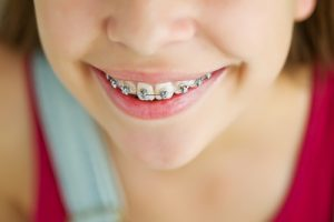 A child with braces