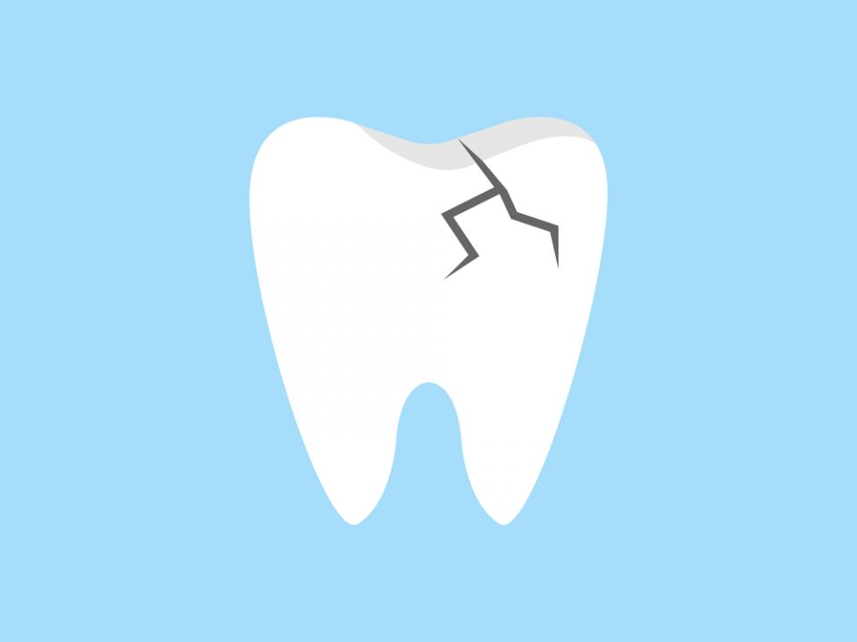 an image of a cracked tooth