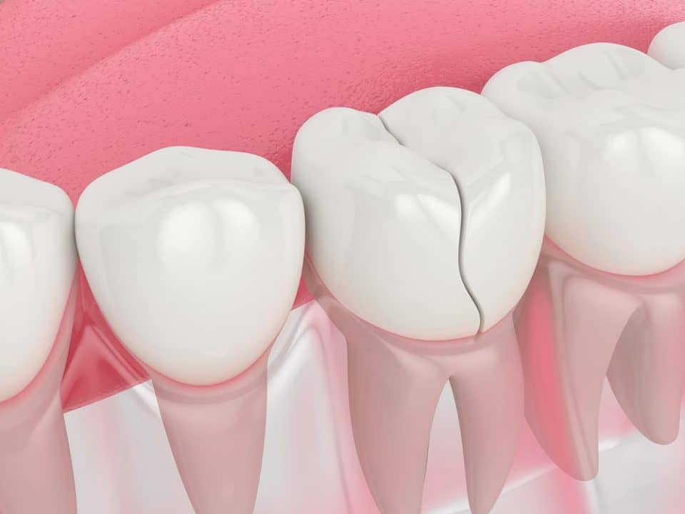 3d model of a cracked tooth